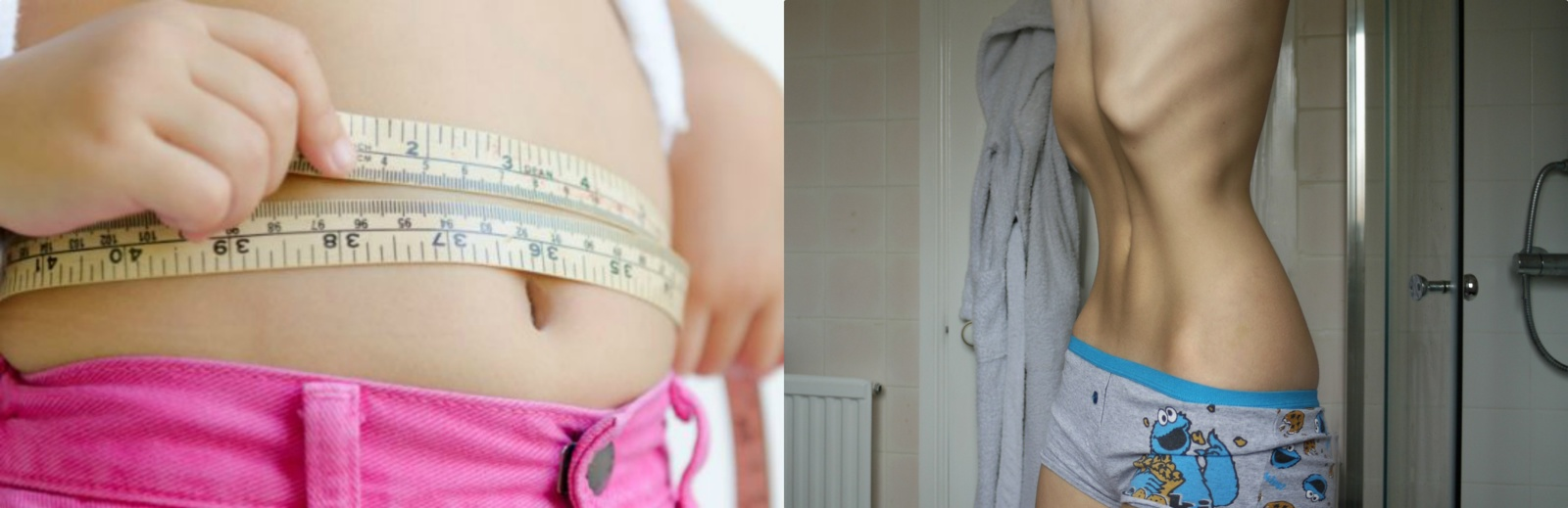 Vaikų nutukimas plinta kaip epidemija