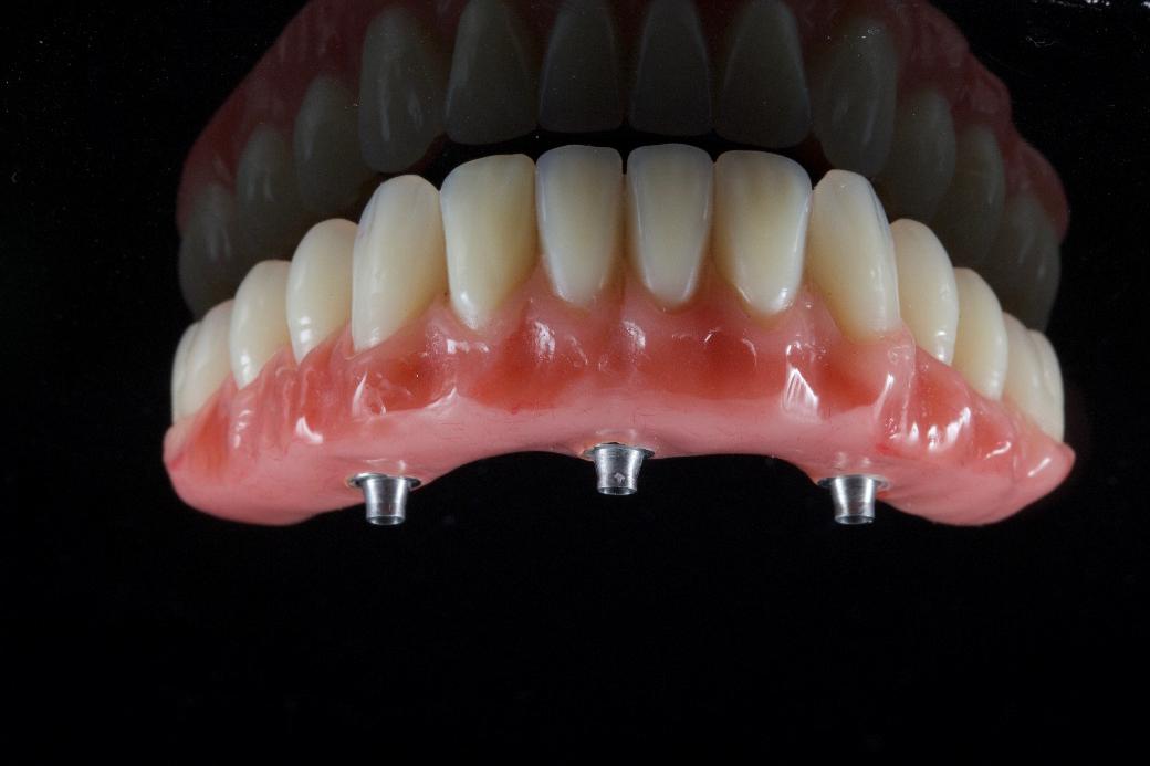 """Kauno klinikos """"Angitia"""" daktaras – tarp pirmųjų 50-ies pasaulio odontologų, turinčiųjų teisę dirbti su unikalia dantų implantavimo sistema"""