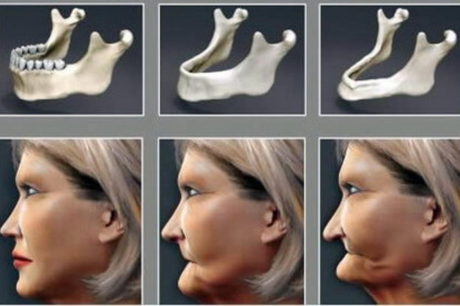 Gydytojas atsako: kas vyksta kūne, netekus dantų?