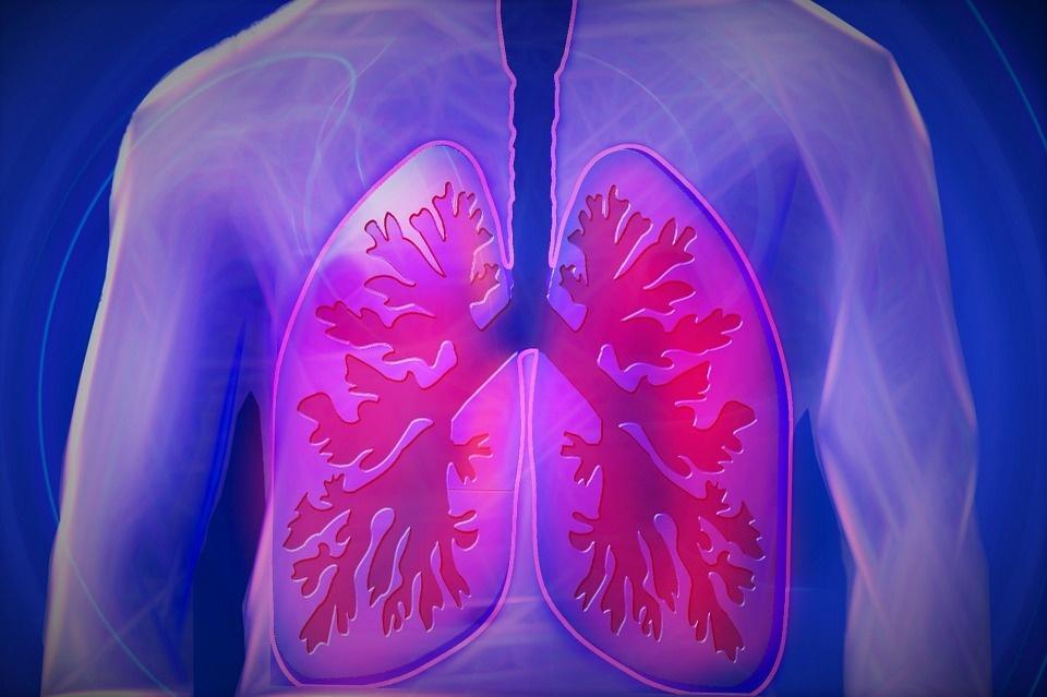 Plaučių vėžio nemažėja Europoje, o Lietuvoje situacija dar prastesnė