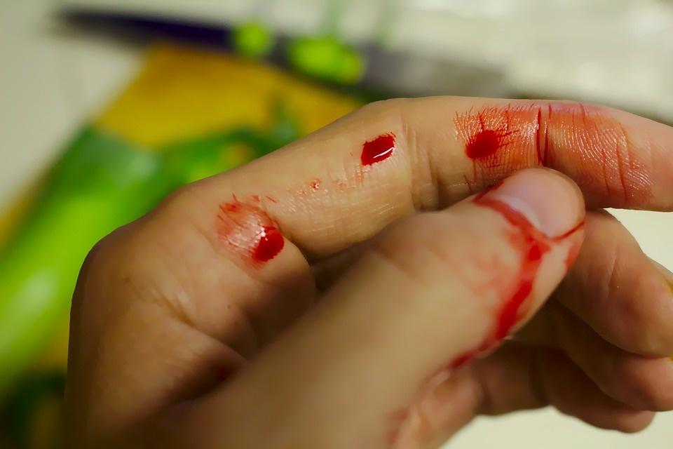 Kodėl kai kurie žmonės alpsta vos pamatę kraują?