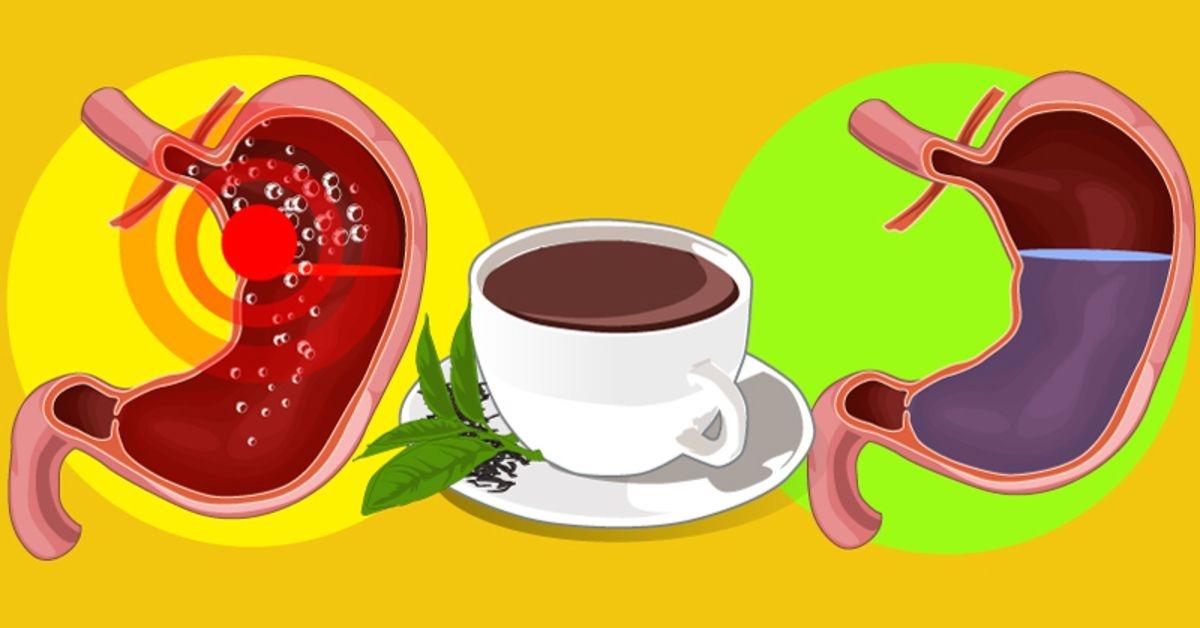 Kurie maisto produktai gali padėti numalšinti rėmenį? Sužinokite