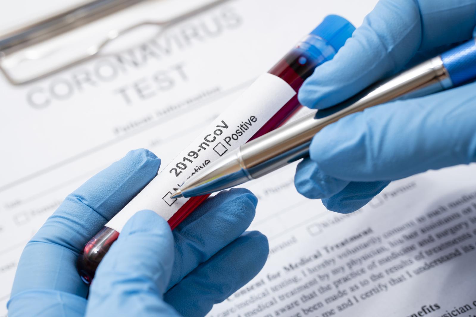 Koronavirusas nustatytas iš Kazachstano į Lietuvą grįžusiam medicinos darbuotojui