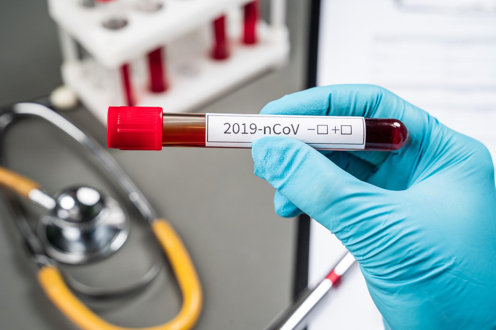 Koronavirusas patvirtintas  pensinio amžiaus Jurbarko rajono gyventojui