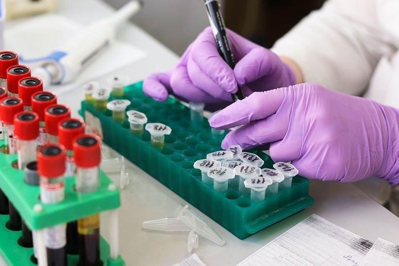 Jurbarke prevenciškai dėl koronaviruso bus tiriami vaistininkai ir prekybos darbuotojai
