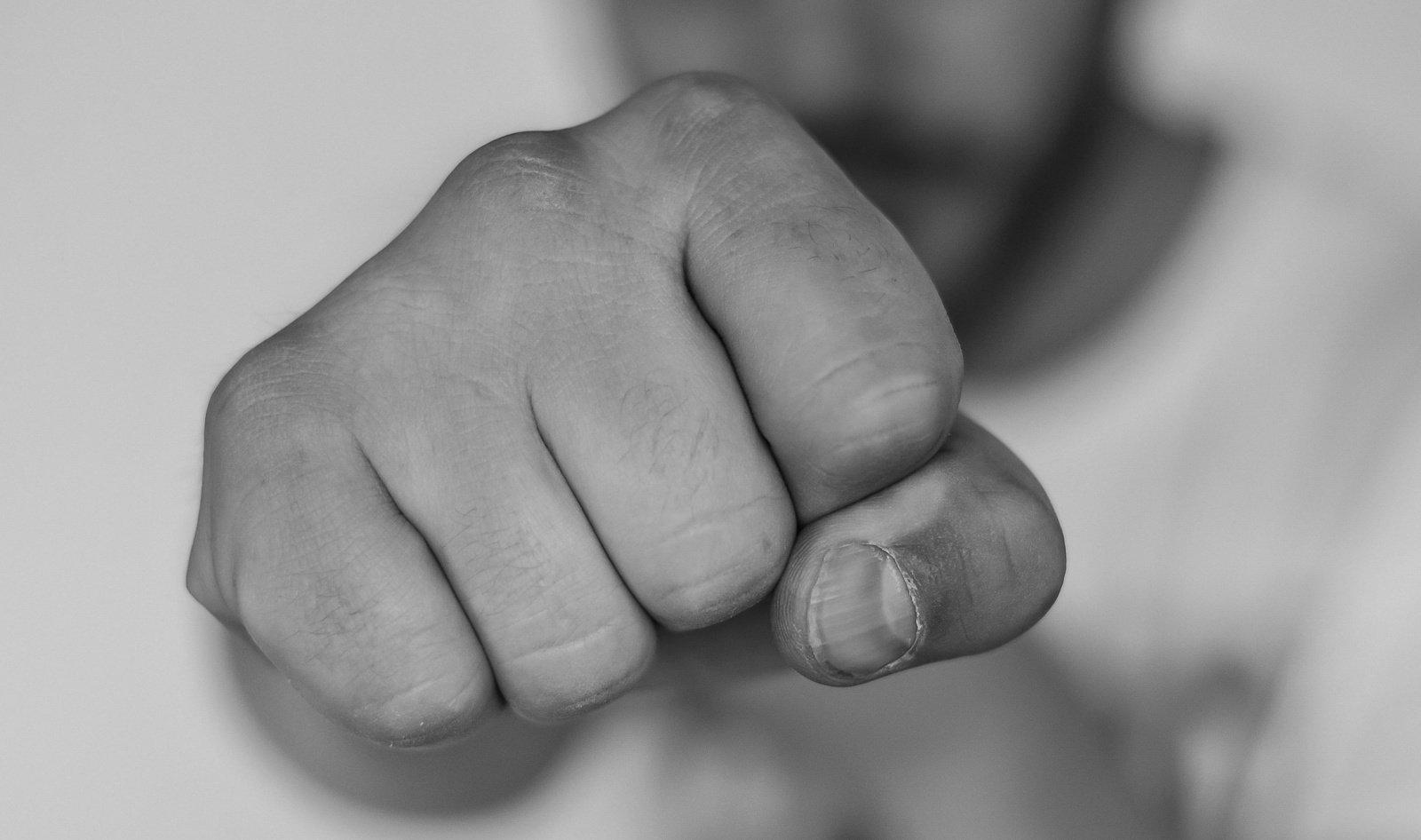 Biržuose kofliktas tarp vyrų: išlipęs iš automobilio trenkė į veidą