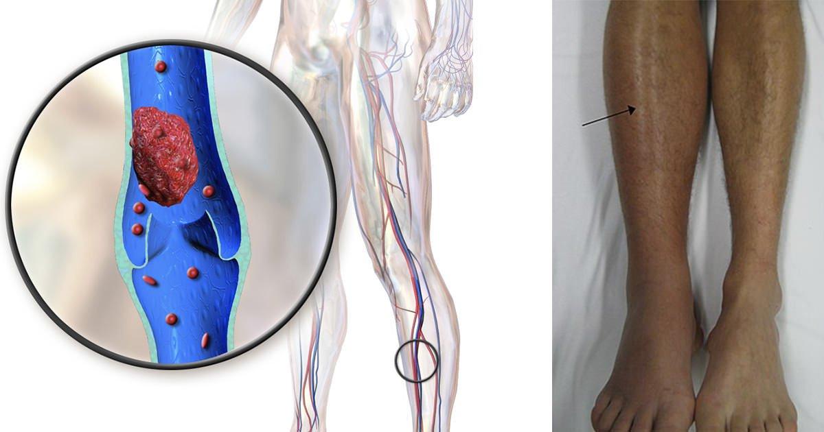 9 pavojingos ligos, kurios pasireiškia pėdų tinimu
