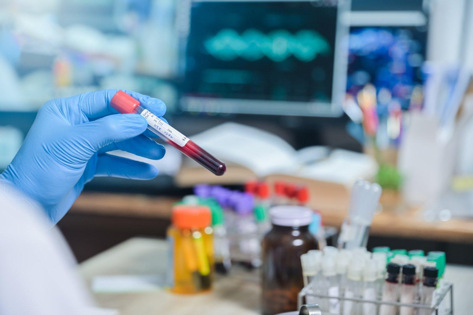 Kelmėje nustatyta 12 naujų COVID-19 atvejų – virusas įsisuko į Kelmės ligoninę