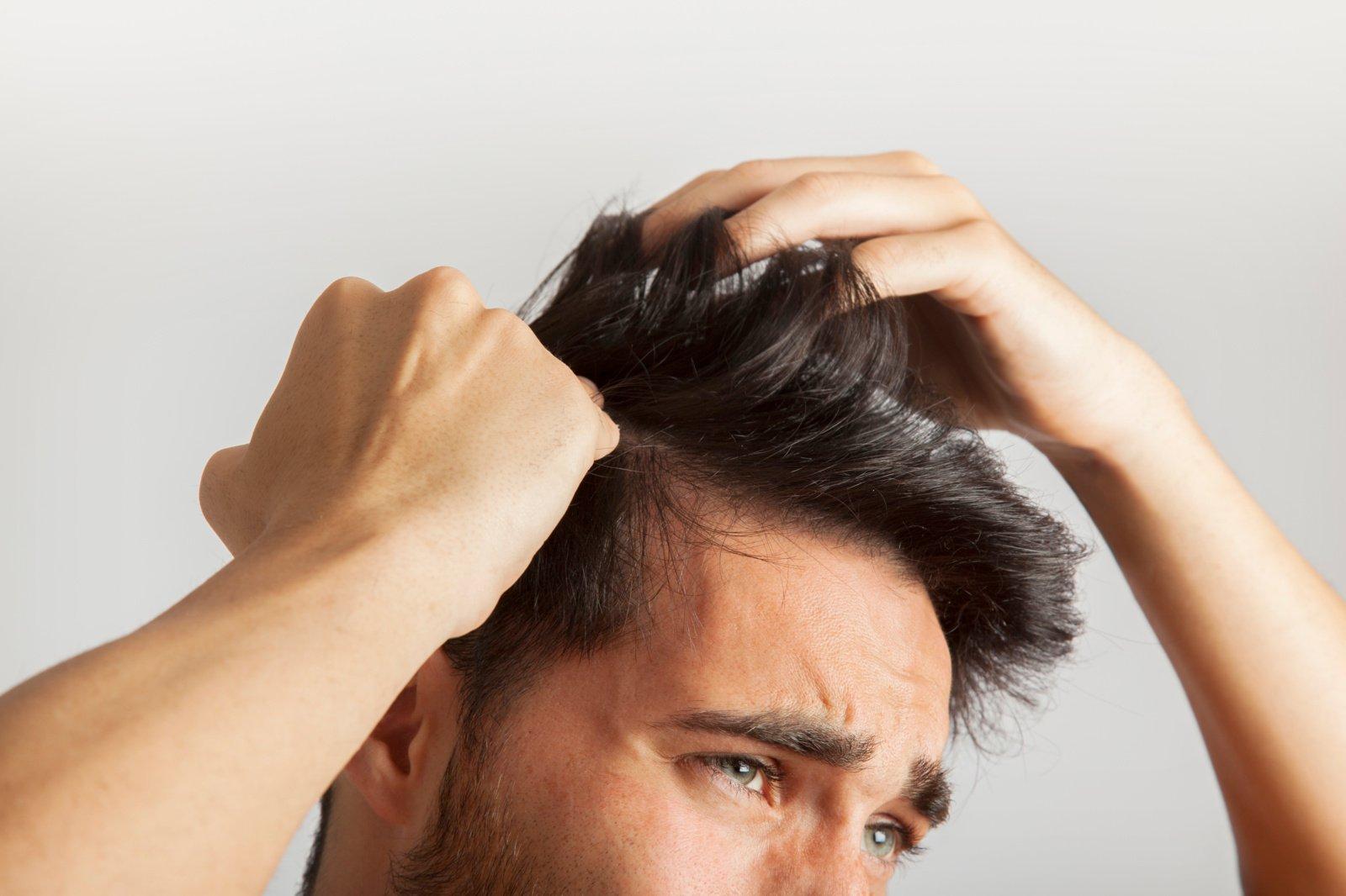 Vyriškas košmaras – plikė: kaip slenkantys plaukai keičia vyrų psichologinę būklę?