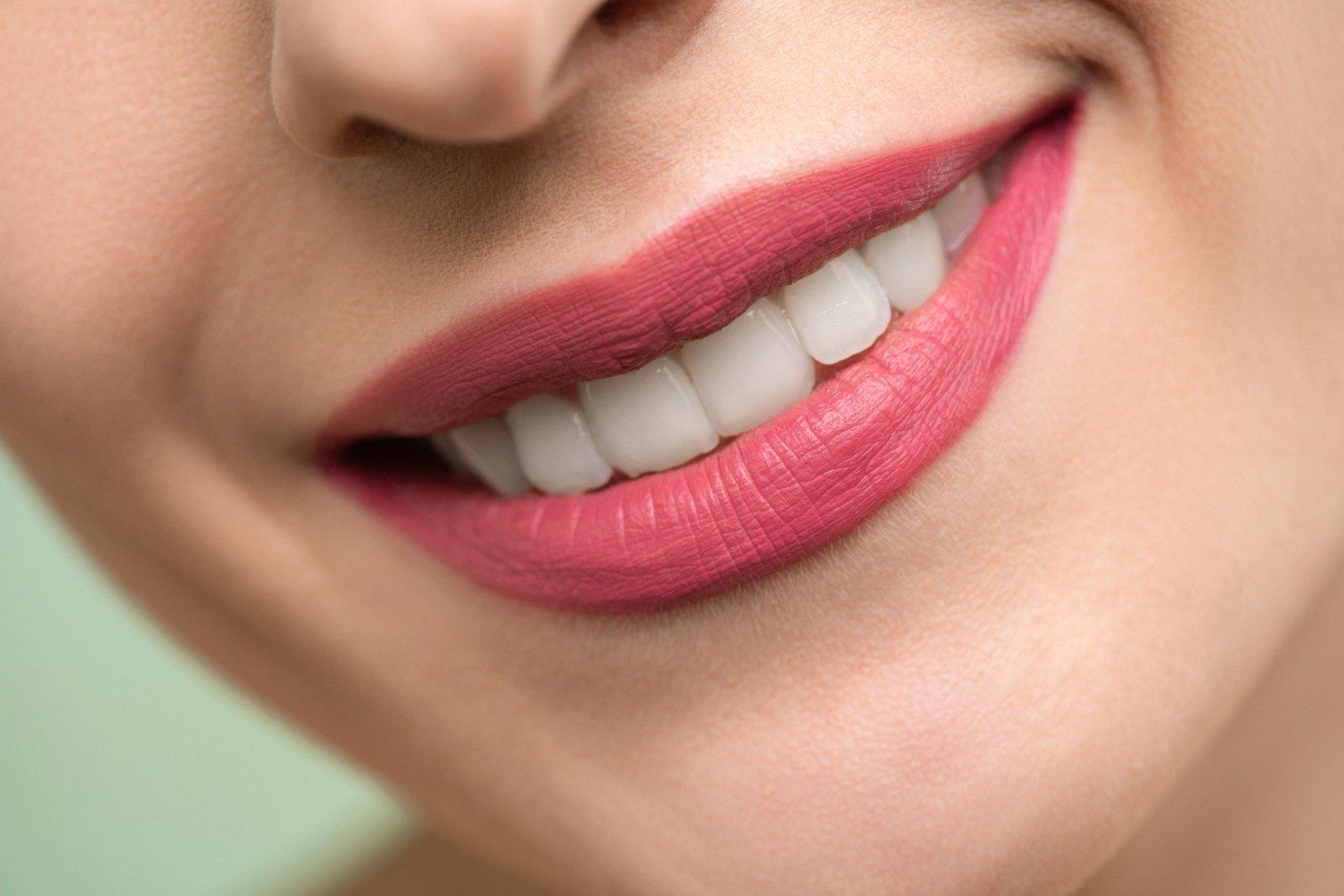 Dantų laminatės – kas tai?
