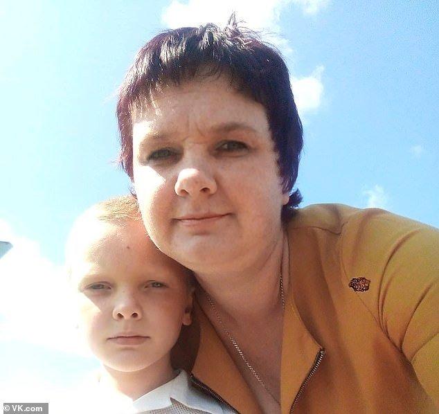 Motina pripylė aštuonmečiui sūnui į burną benzino ir padegė