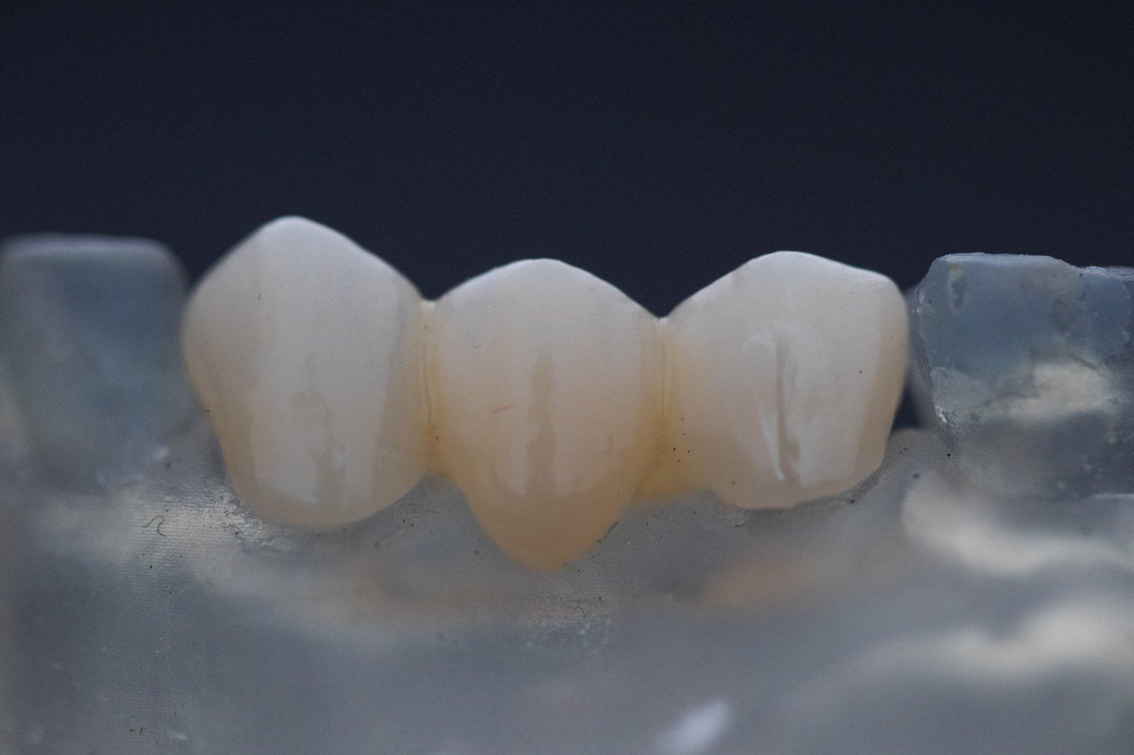 4 didžiausi mitai apie dantų ėduonį