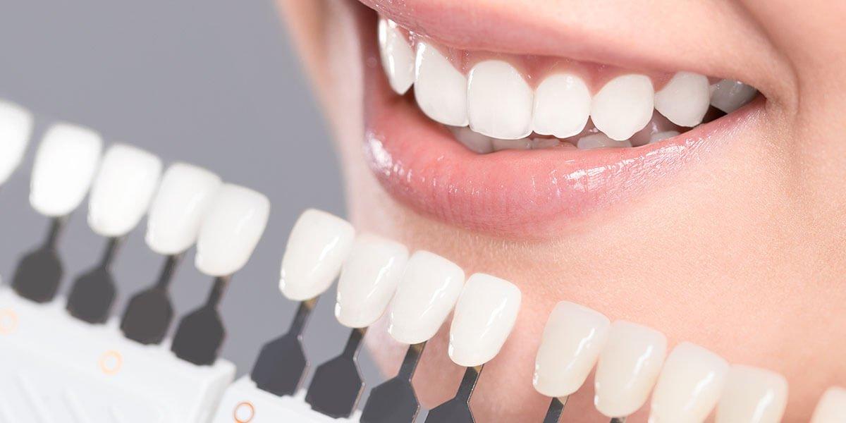 Dantų balinimas: būdai ir priemonės, kad jūsų dantys išliktų balti