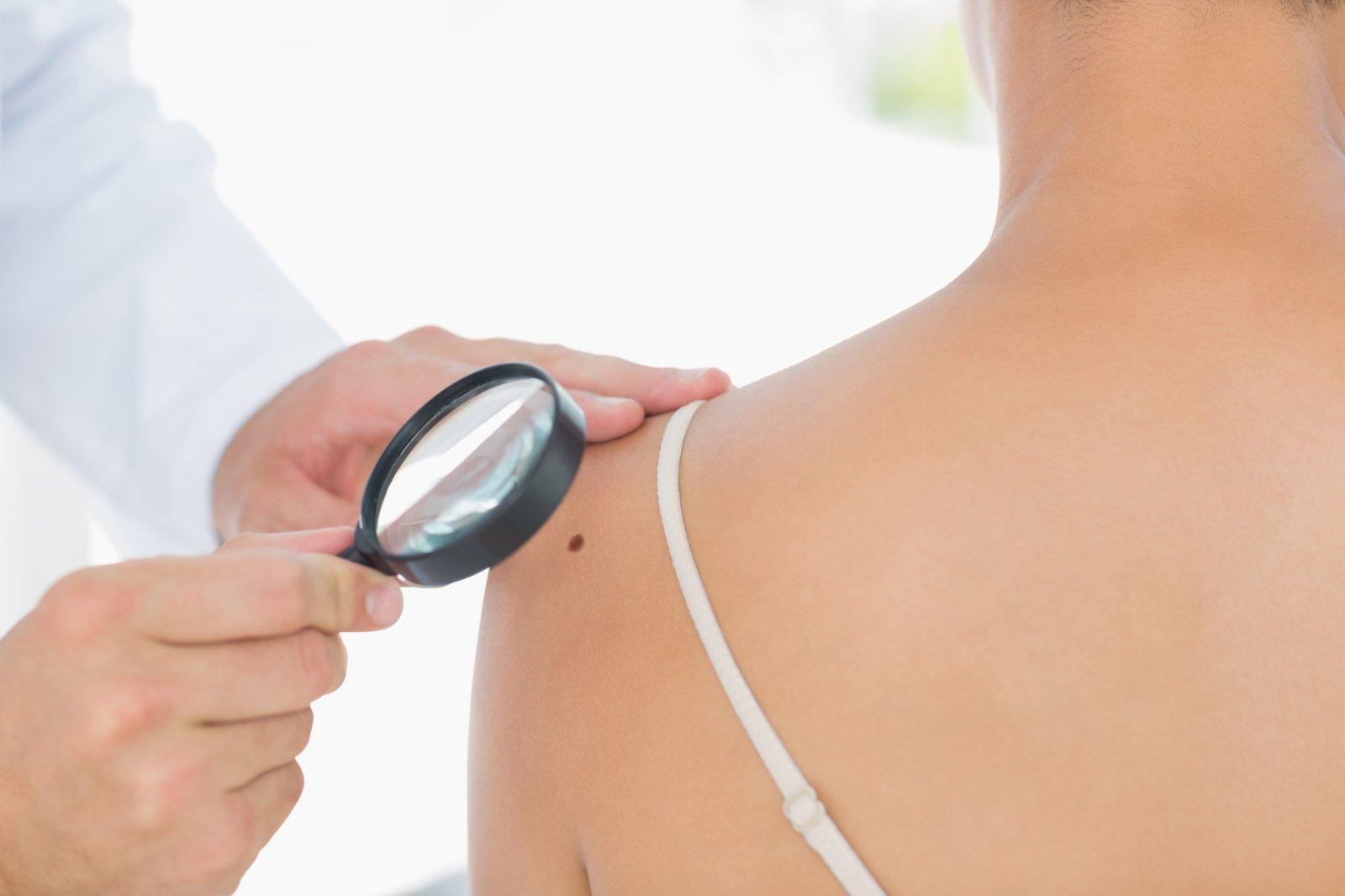Melanoma: agresyvus vėžys, kurį svarbiausia diagnozuoti anksti