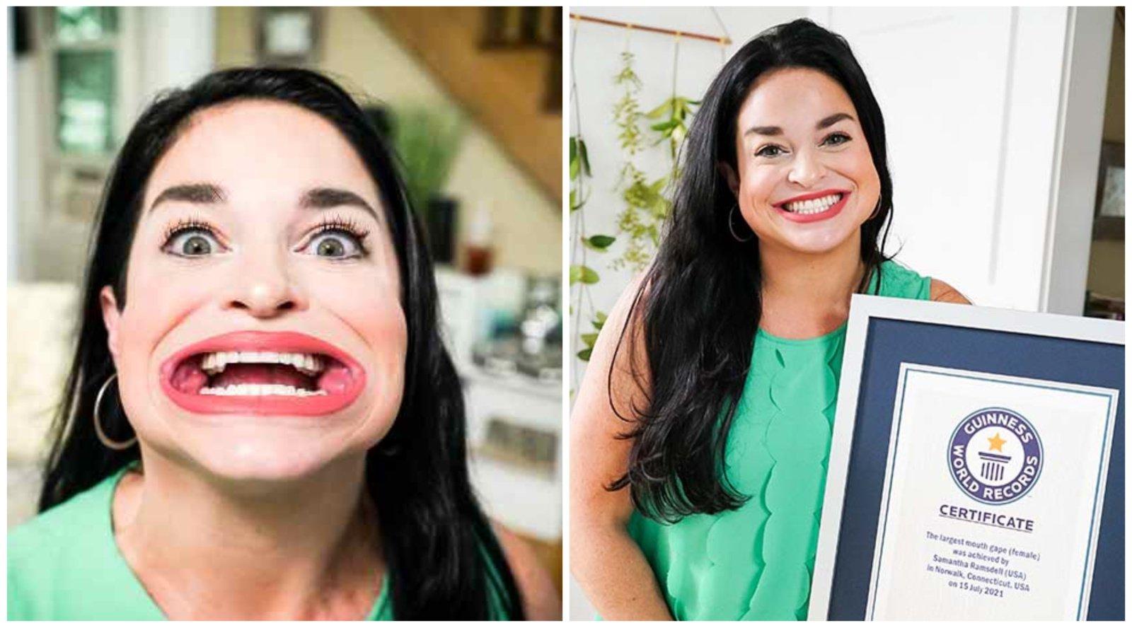 Gineso rekordininkė turi didžiausią burną pasaulyje