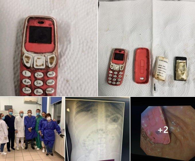 """Būna ir taip: vyras prarijo """"Nokia 3310"""" telefoną"""