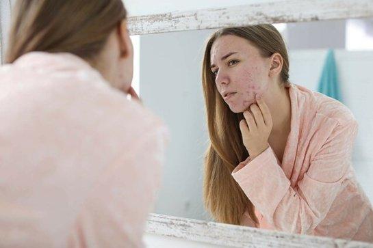 Kaip prižiūrėti į aknę linkusią odą?