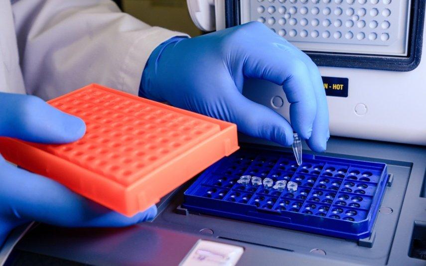 Praėjusią parą Lietuvoje nustatyti 99 nauji koronaviruso atvejai