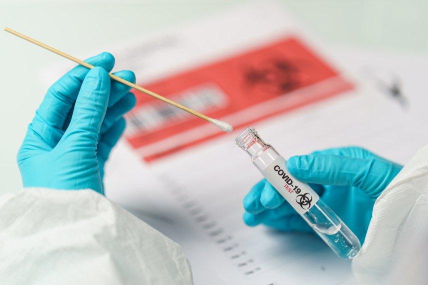 Mažeikių rajone COVID-19 liga serga 19 gyventojų