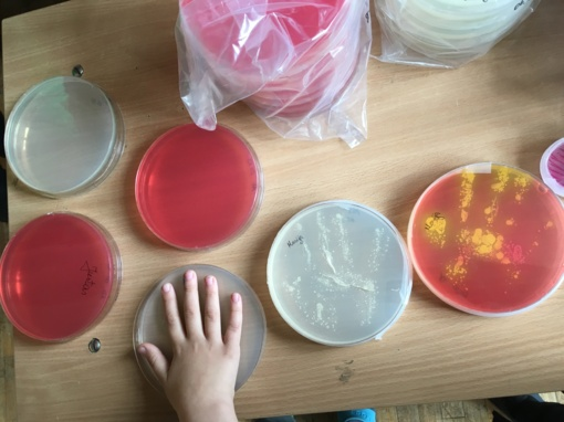 Įvarios rankos - mikrobams patrankos