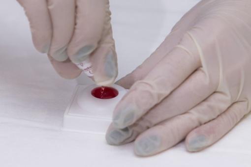 Prasidėjo testavimo savaitė - kam rekomenduojama pasitikrinti dėl hepatitų ir ŽIV?