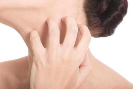 Gydytoja dermatovenerologė Jolanta Česienė: žvynelinė labai apsunkina gyvenimą, tačiau ją galima suvaldyti