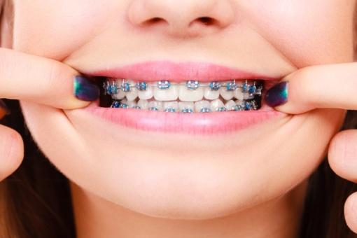 Kreivi dantys – kasdienybė. Kodėl mažėja įgimtų gražių šypsenų savininkų?