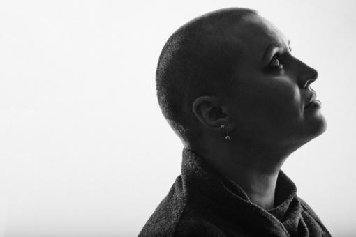 Deimantės nuotykis– vėžys