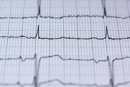 Šilutės ligoninėje atliekamas Holterio monitoravimas