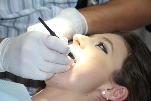 Kaip per 2 dienas panaikinti dantų akmenis?