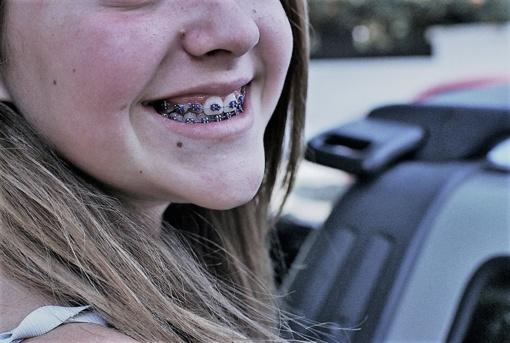 Tiesūs dantys – mada ar būtinybė?