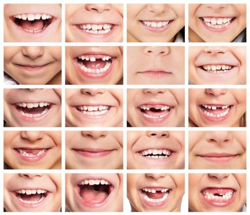 Aptarta Pasvalio rajono mokinių dantų būklė