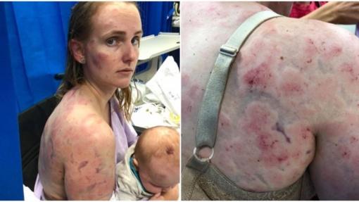 Didvyriškas motinos poelgis: nuo krušos gelbėdama dukrą, patyrė sunkių sužalojimų