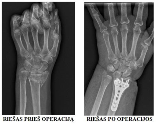 Riešo lūžius patyrusiems pacientams gydytojas ortopedas traumatologas pranešė svarbią žinią