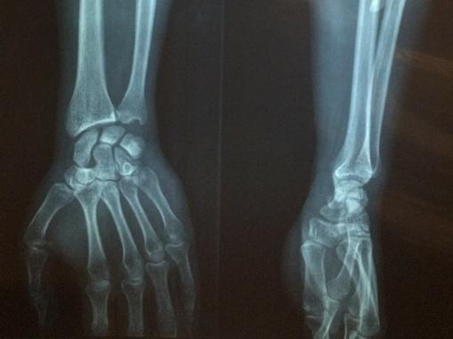 Ortopedas traumatologas: kada būtina ieškoti jo pagalbos?