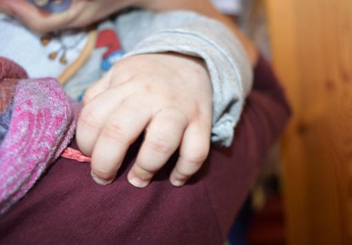 Kauno klinikinė ligoninė stiprina jėgas kovai su vaikų tuberkulioze