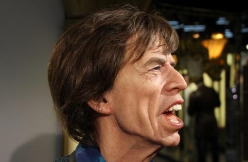 Mickui Jaggeriui sėkmingai atlikta širdies operacija