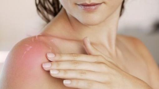 Pavojingas saulės ir vaistų derinys: kokius vaistus vartojantiems žmonėms vengti saulės vonių?