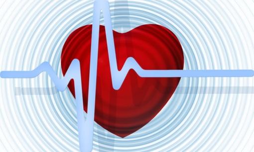 Kaip širdis reaguoja į karščius? Priepuolio riziką įmanoma įvertinti