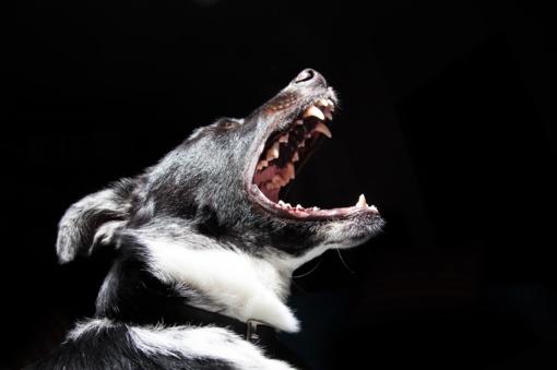 Mažametę mergaitę užpuolė šuo