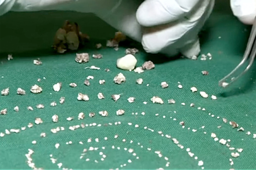 Neįtikėtina: iš septynmečio burnos pašalinti 526 dantys