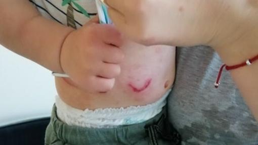 Nemalonus incidentas Kauno rajone iškėlė dilemą: šuo apkandžiojo vaiką – kas kaltas?