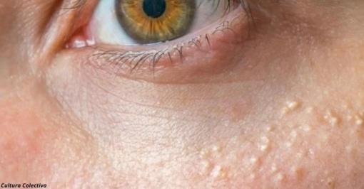 Balti spuogeliai ant odos. Iš kur jie atsiranda ir kaip jų atsikratyti?