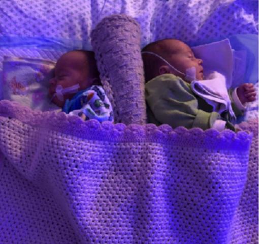 Klaipėdiečių šeimai gimę dvyniai sulaukė stebuklo: medikai atliko pirmą tokią procedūrą šalies istorijoje