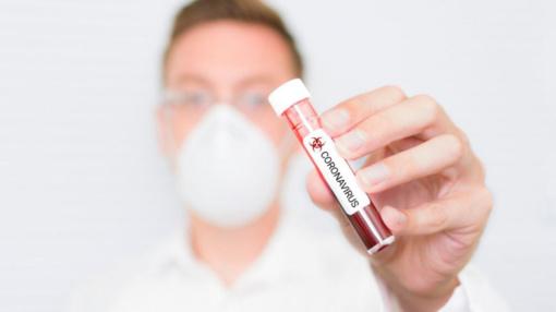 Italijoje užsikrėtusiųjų koronavirusu skaičius perkopė 150