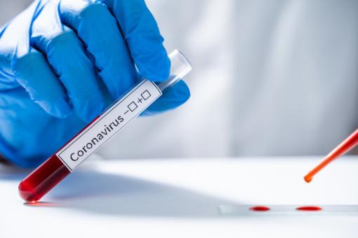 Šeškinės poliklinikos darbuotojui patvirtinta koronaviruso infekcija