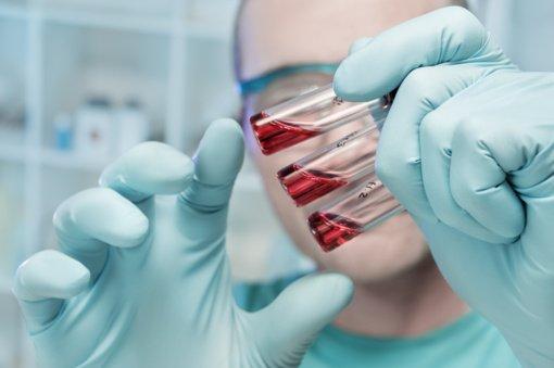 Lietuvoje patvirtintas 771 koronaviruso atvejis