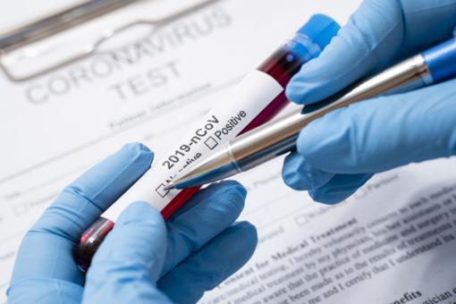 Mažeikių rajono gyventojo gyvybę pasiglemžė koronavirusas