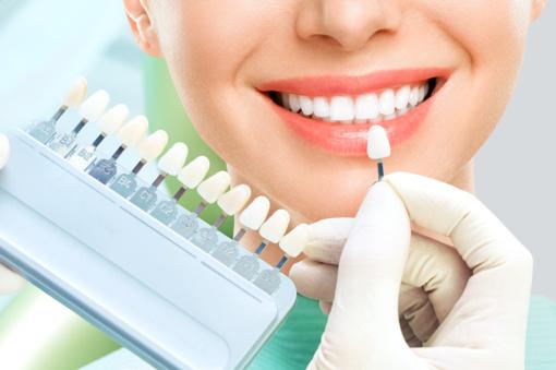 Balinamoji dantų pasta spindinčiai ir nepriekaištingai šypsenai