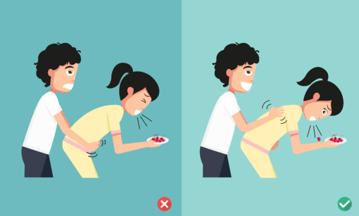 Pirmoji pagalba užspringus: svarbi kiekviena sekundė